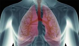 Πνευμονικό οίδημα: Ποια είναι τα συμπτώματα και τι πρέπει να κάνετε